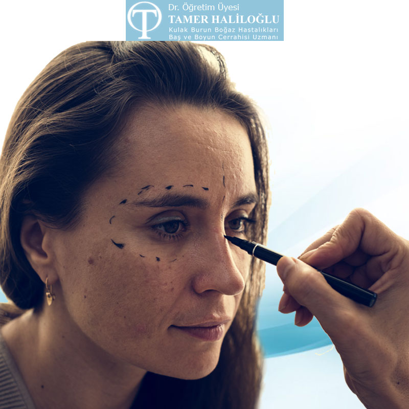cat eye surgery istanbul